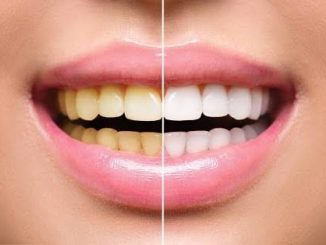 Are you bothered by yellow teeth? Try this remedy!