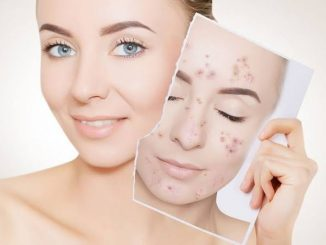 Acne can have serious psychological consequences. Adopt this home remedy
